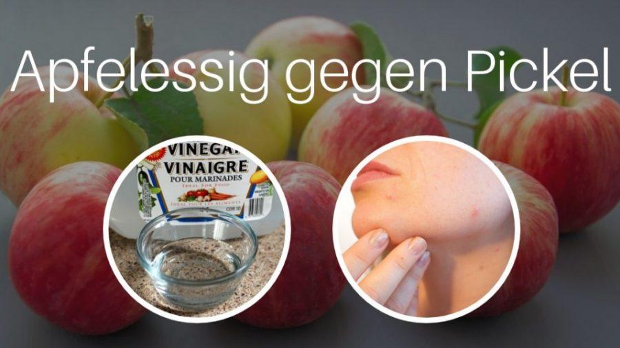 Apfelessig gegen Pickel_schweiztipps